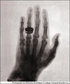 La prima immagine a raggi X