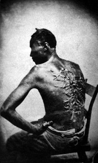L'ex schiavo di nome Gordon mostra le sue cicatrici, Baton Rouge, Louisiana, 1863