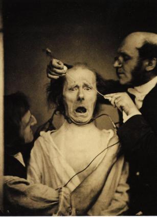 Il neurologo Duchenne de Boulogne dà scosse elettriche al volto di un uomo al fine di studiarne i muscoli facciali, Francia 1862