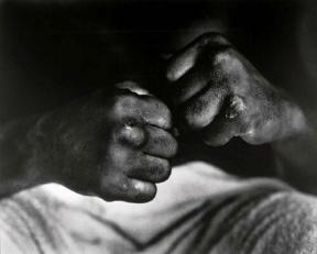 Le mani di Muhammad Ali dopo l'incontro con Henry Cooper, 1966. Foto di Gordon Parks