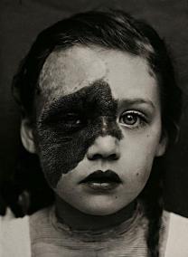 Una fotografia medica di una giovane ragazza dagli archivi dell'ospedale universitario di Utrecht, 1890