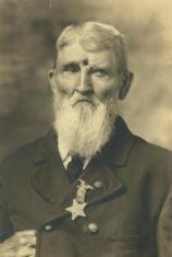 Veterano di guerra civile Jacob Miller, colpito alla fronte nel 1863. Ha vissuto con la ferita aperta per molti anni