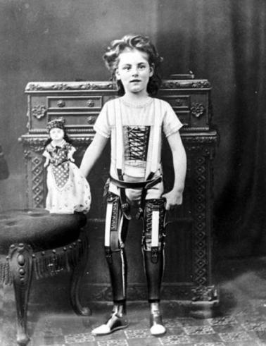 Le prime protesi alle gambe, Inghilterra 1890