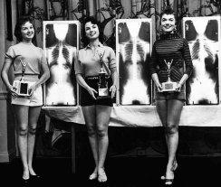 Concorso di bellezza chiropratica, 1956. Miss Colonna Vertebrale