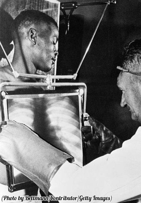 Un minatore è passato ai raggi x alla fine del suo turno per verificare che non abbia rubato nulla. Kimberly, Sud Africa 1954