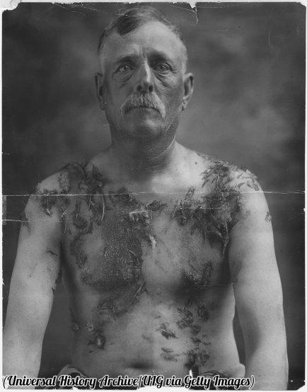 Il contadino John Meints coperto di piume in Minnesota durante la prima guerra mondiale per non sostenere le unità di obbligazioni di guerra