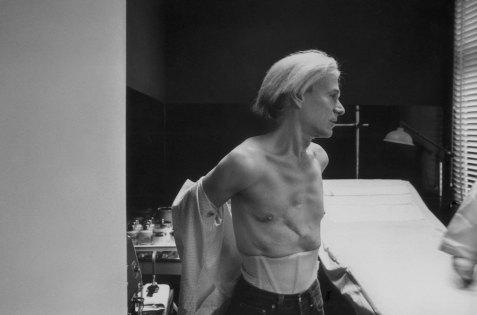 Le ferite di Warhol dopo essere stato sparato da Valerie Solanas