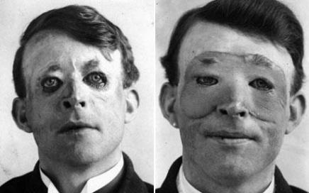Walter Yeo, uno dei primi uomini a sottoporsi alla chirurgia estetica. Le palpebre erano rimaste danneggiate durante la Prima Guerra Mondiale