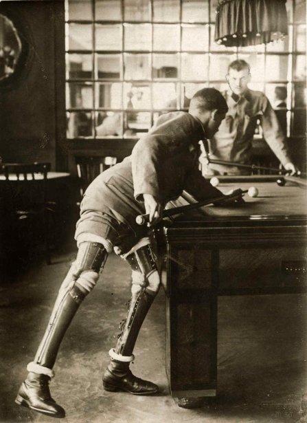 Prima guerra mondiale - un soldato, con doppia amputazione, gioca a biliardo con le gambe protesiche, 1915
