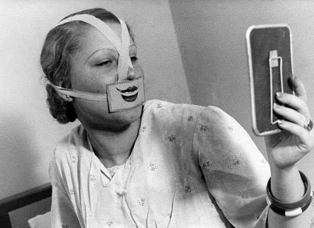 """Una donna che indossa un sorriso falso allo """"Smile Club"""" di Budapest. Questo club fu creato dal professor Jeno e un ipnotizzatore di nome Binczo, per contrastare la mania suicida prevalente in Ungheria, 1930"""