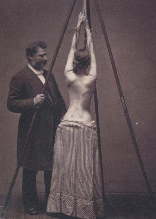 Medico ispeziona una donna che soffre di scoliosi durante il 19 ° secolo
