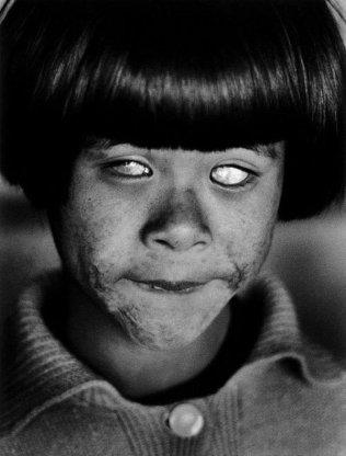 Occhi che hanno visto un'esplosione nucleare. Hiroshima, in Giappone. 8 agosto 1945