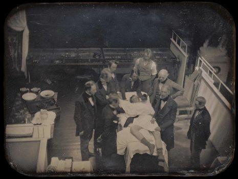 La prima fotografia di una vera operazione medica dal vivo, 1847