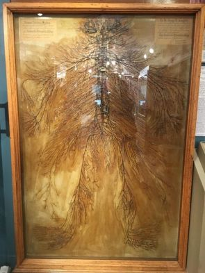 Questo è un sistema nervoso umano intatto che è stato sezionato da 2 studenti di medicina nel 1925. Ci sono voluti più di 1500 ore. Ce ne sono solo 4 al mondo