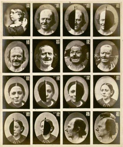 Foto medica d'epoca