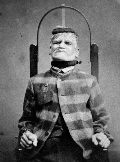 Un paziente in una sedia di contenzione al West Riding Asylum Wakefield Yorkshire, 1869