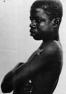 """""""António Mixone, sopravvissuto al massacro di Wiriyamu"""" (1973) Il massacro di Wiriyamu fu un massacro in cinque villaggi della provincia di Tete, Mozambico, durante la guerra coloniale (1961-1974). Fotografia di autore sconosciuto."""